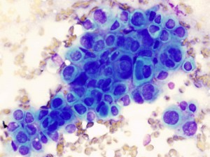 Microscopic appearance of a cancer from fine needle aspiration